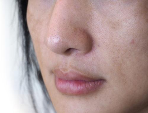 Así elimina la medicina estética las manchas en la cara