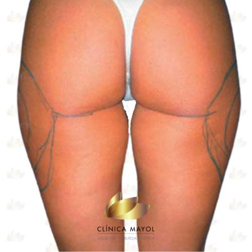 Liposucció cames abans del tractament
