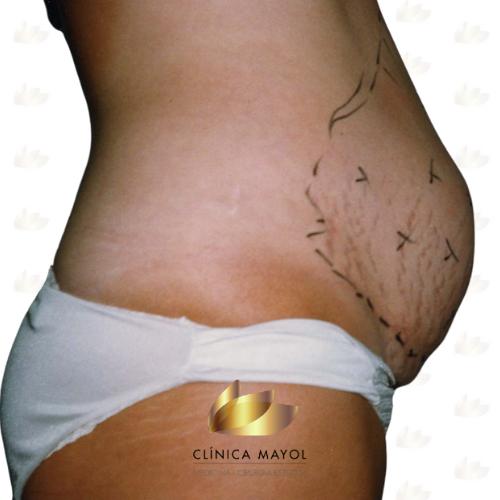 Lipolaser d'abdomen abans del tractament