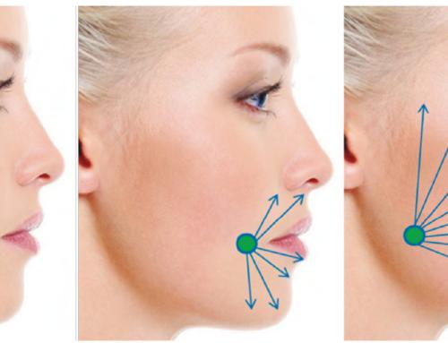 Novedad en redensificación facial: técnica MAY-3