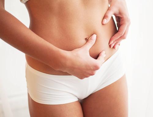 ¿Por qué la liposucción es una de las cirugías más demandadas?